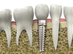 Learn more about the procedure for dental implants in Los Fresnos.